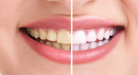 દાંતની પીળાશ દૂર કરવા અપનાવો આ ઉપાય