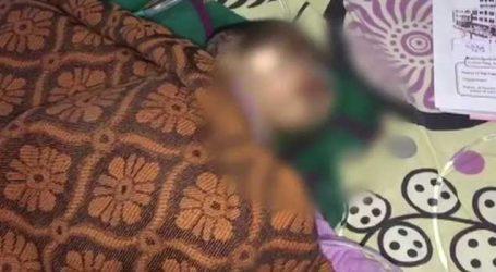 અંધવિશ્વાસની પરાકાષ્ઠા, 3 વર્ષના બાળકને ગરમ સળિયો લઈને કરી દીધો દંડ