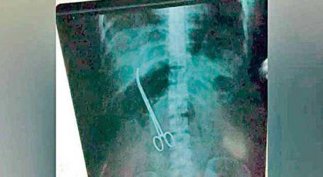 ડૉક્ટરો મહિલાના પેટમાં કાતર ભૂલી ગયા ખબર પણ ત્રણ મહિના પછી પડી