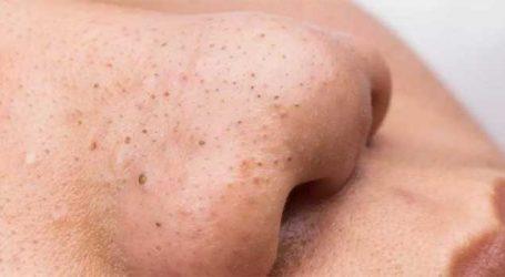 ચહેરાના બ્લેકહેડ્સ કરે છે પરેશાન? આ રીતે મેળવો સમાધાન